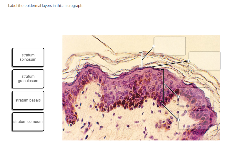 label the epidermal layers in this micrograph. str | chegg, Human Body