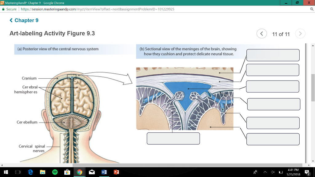 Solved choices pia matter brain csf filled subarachnoid question choices pia matter brain csf filled subarachnoid space spinal cord dura mater brain csf fille ccuart Images