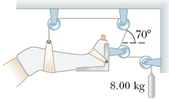 Image for A setup similar to the one shown in the figure above is often used in hospitals to support and apply a tractio