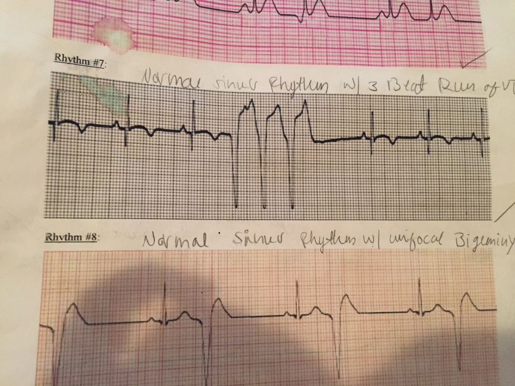 Solved: ECG #7 Normal Sinus Rhythm With A Multifocal 3 Bea