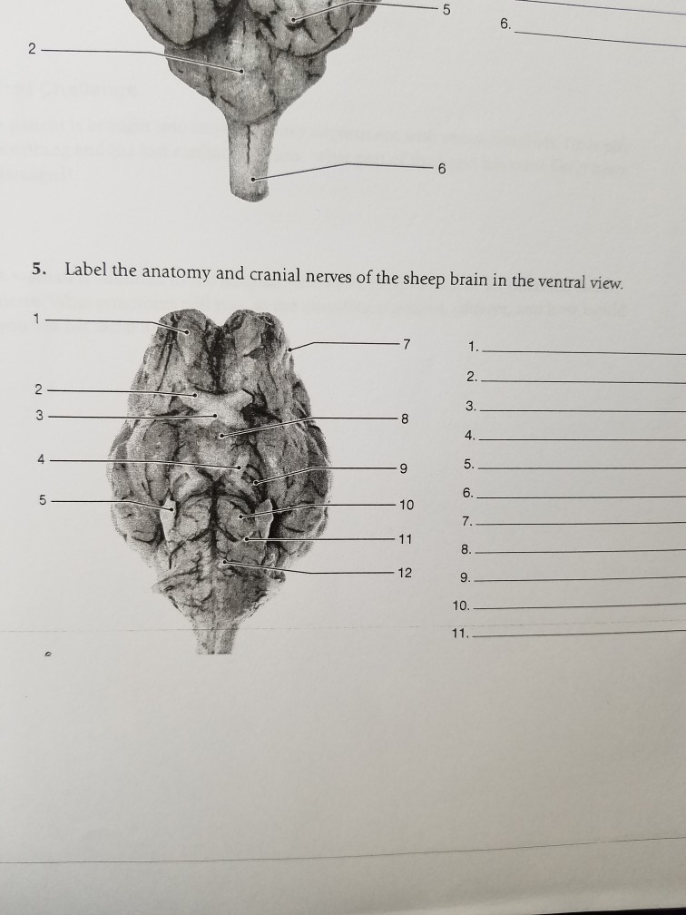 Solved: 5. Label The Anatomy And Cranial Nerves Of The She ...