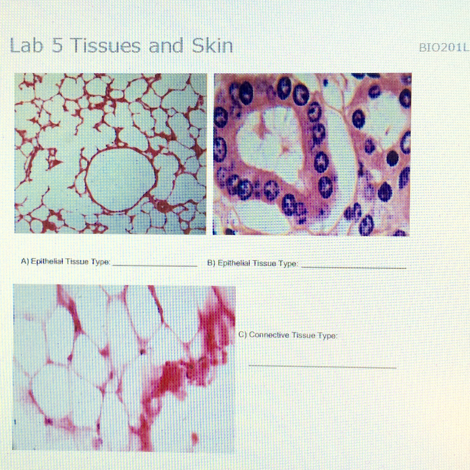 Solved: Lab 5 Tissues And Skin Epithelial Tissue Type: Epi ...
