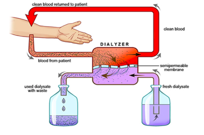 Solved dialysis is a process where a person with nonfunct clean blood returned to patent blood from patient used dialysate with waste dialyzer clean blood semipermeable ccuart Images
