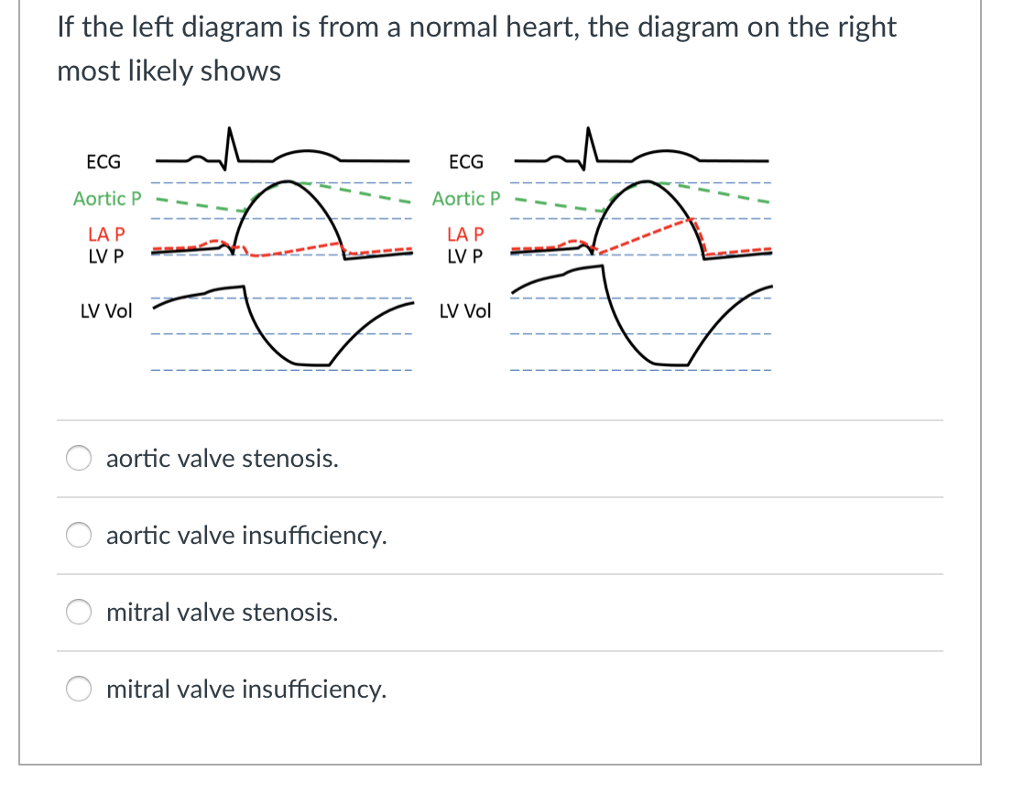 Solved if the left diagram is from a normal heart the di if the left diagram is from a normal heart the diagram on the right most ccuart Image collections