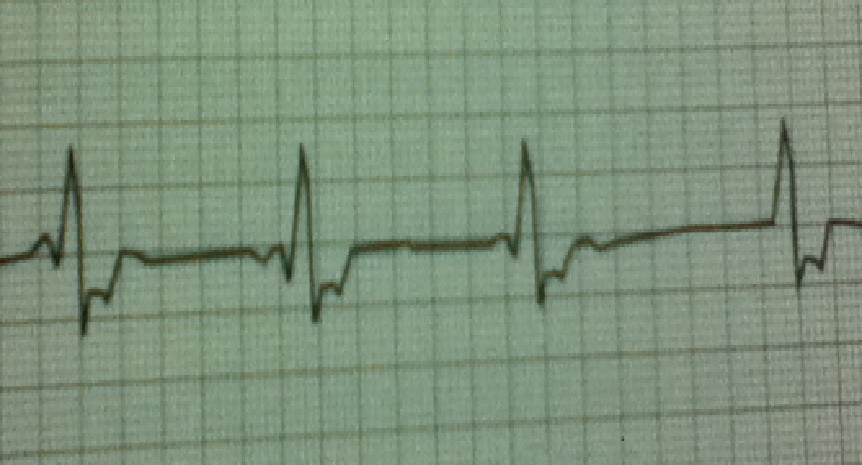 Solved: 5  For The Following Given ECG Signal, Determine T