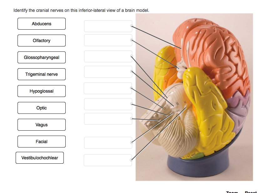 Identify The Cranial Nerves On This Inferior Lateral View Of A Brain Model Abducens