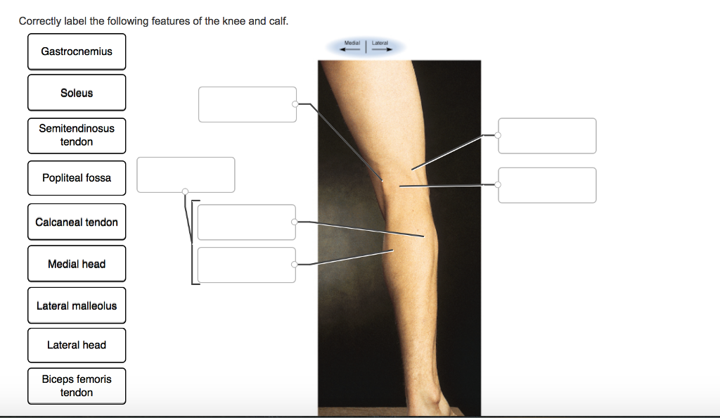 Solved: Correctly Label The Following Features Of The Knee ...