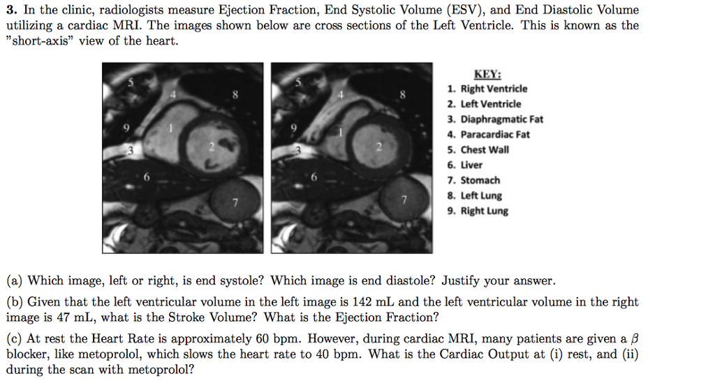 Solved: 3. In The Clinic, Radiologists Measure Ejection Fr ...