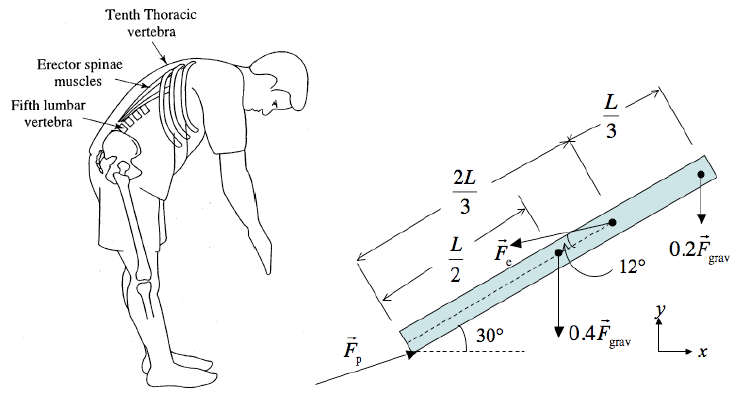 solved when you bend over at the waist large forces are rh chegg com diagram of waste management diagram of wrist tendons