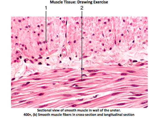 Solved: Muscle Tissue: Drawing Exercise Sectional View Of ...