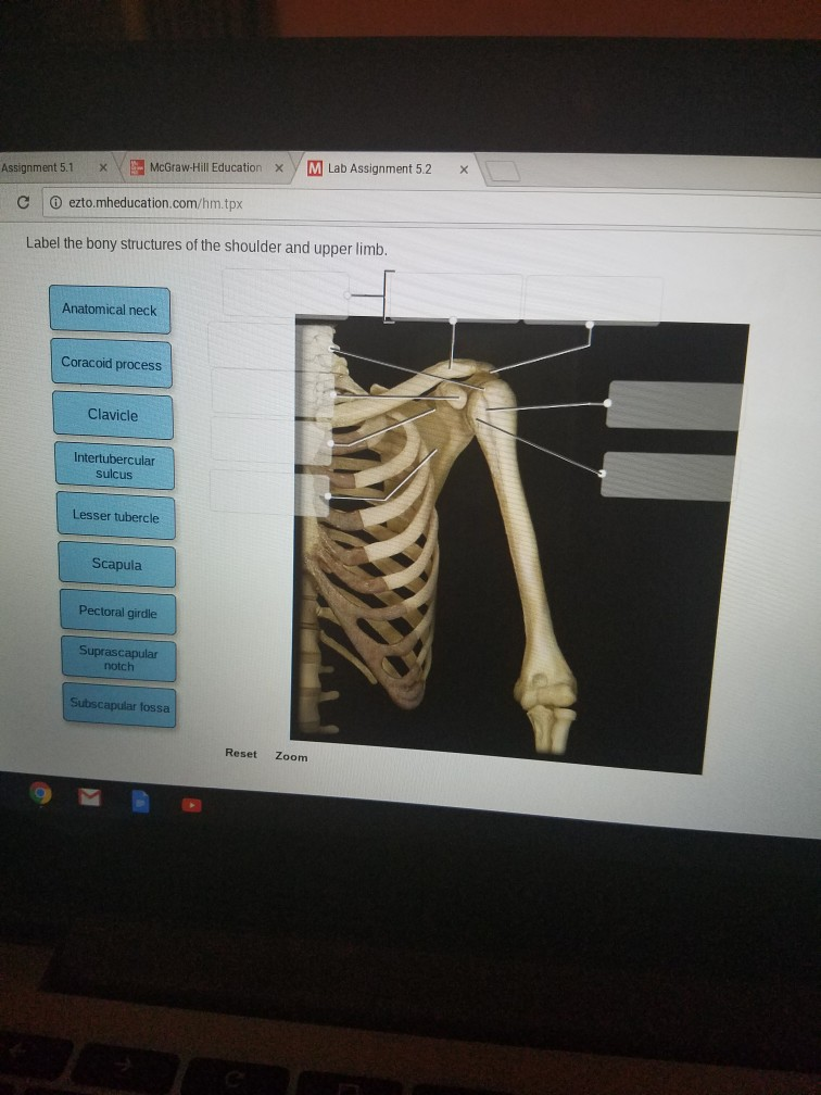 Solved: Label The Bony Structures Of The Shoulder And Uppe ...