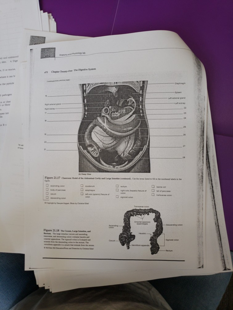 Solved: Anatomy And Physiology Lab Y And Antimicrot And Sn ...