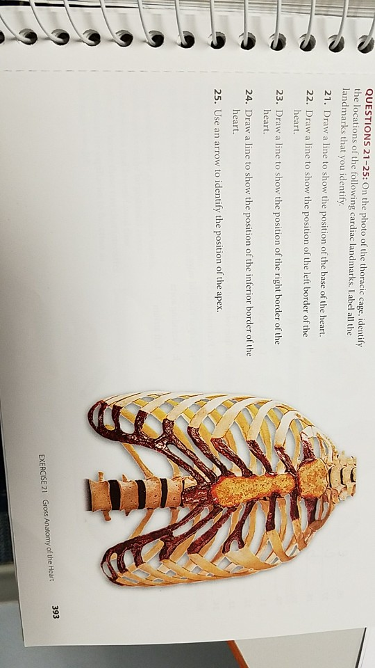 Solved On The Photo Of The Thoracic Cage Identify The Lo