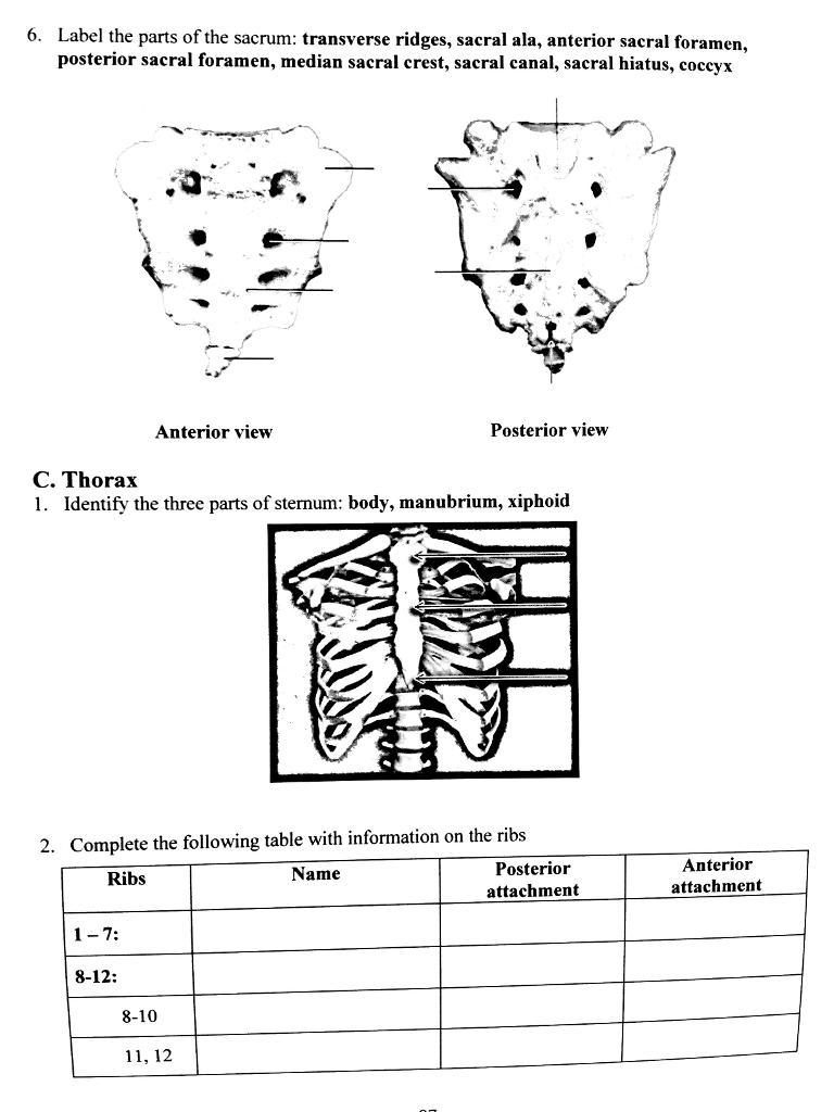 Solved: 6. Label The Parts Of The Sacrum: Transverse Ridge ...