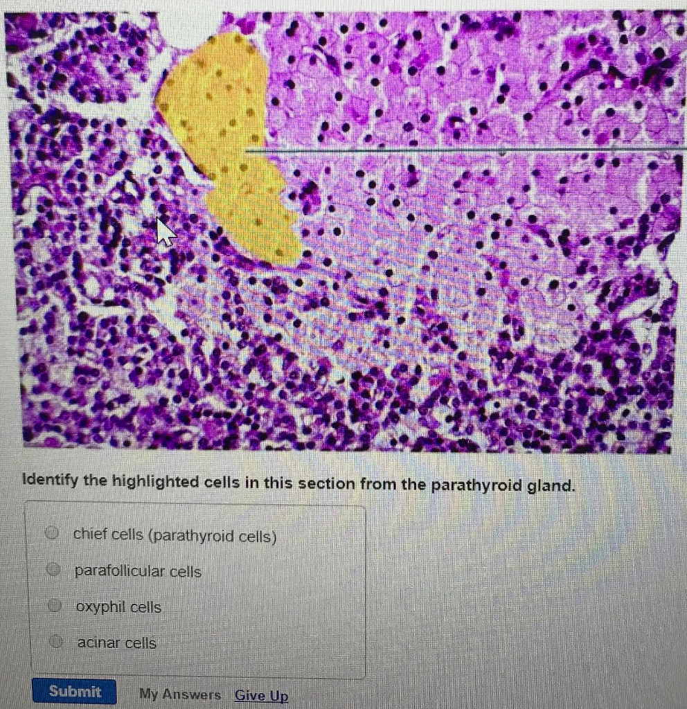 Solved: Identify The Highlighted Cells In This Section Fro ...