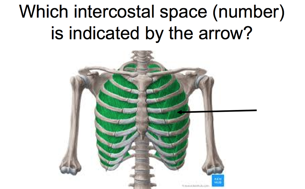 Solved: Which Intercostal Space (number) Is Indicated By T ...