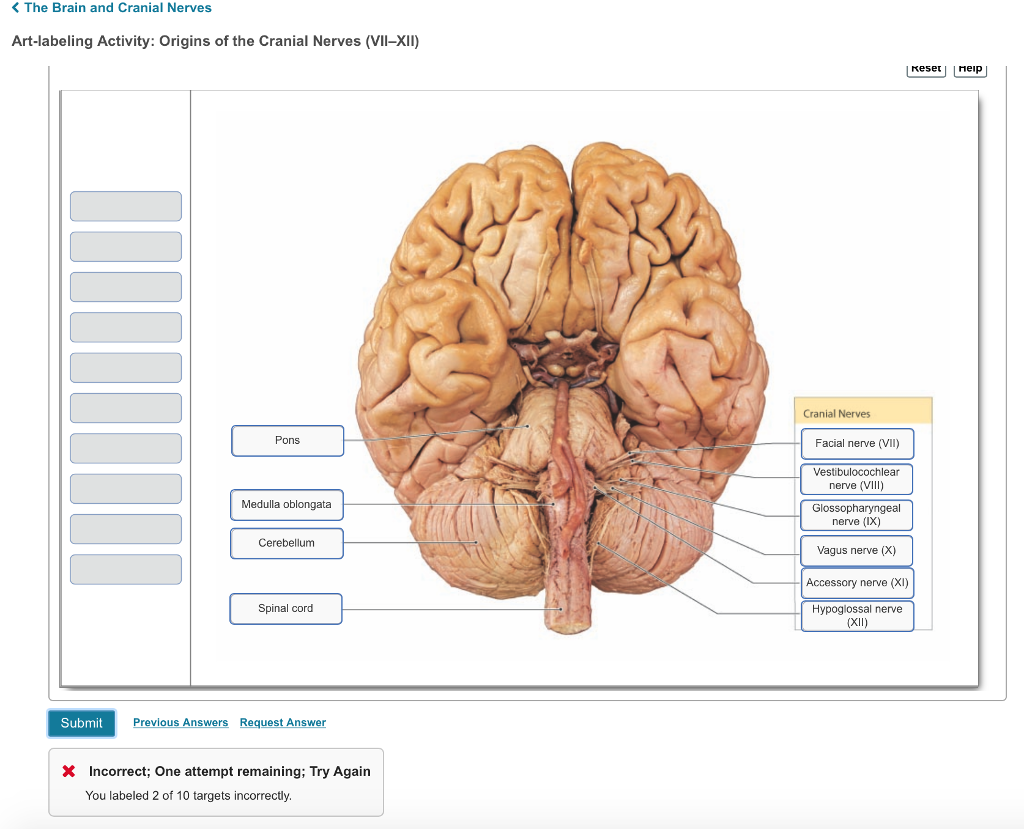 Solved: < The Brain And Cranial Nerves Art-labeling Activi ...