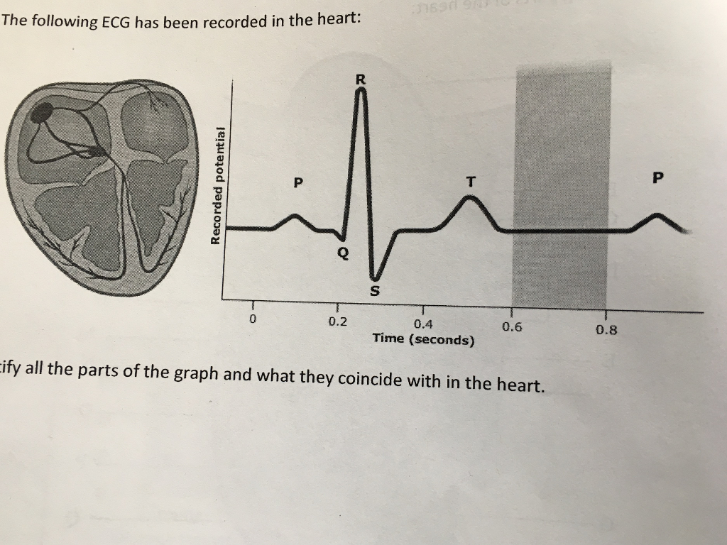 Solved Identify All The Parts Of The Graph And What They