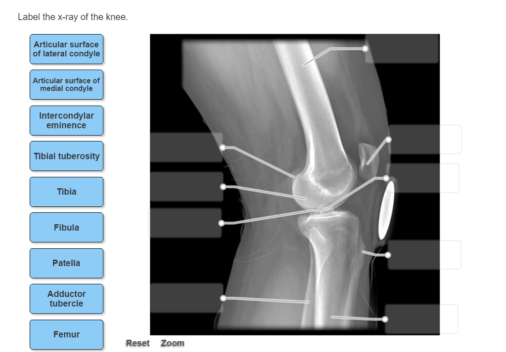 Used College Textbooks >> Solved: Label The X-ray Of The Knee. | Chegg.com