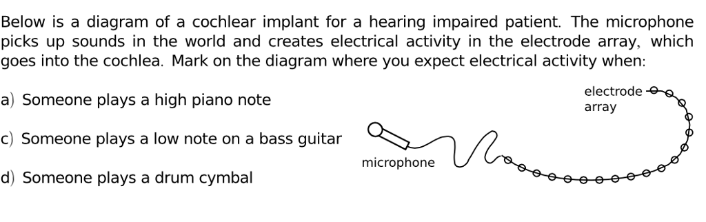 Solved Below Is A Diagram Of A Cochlear Implant For A Hea