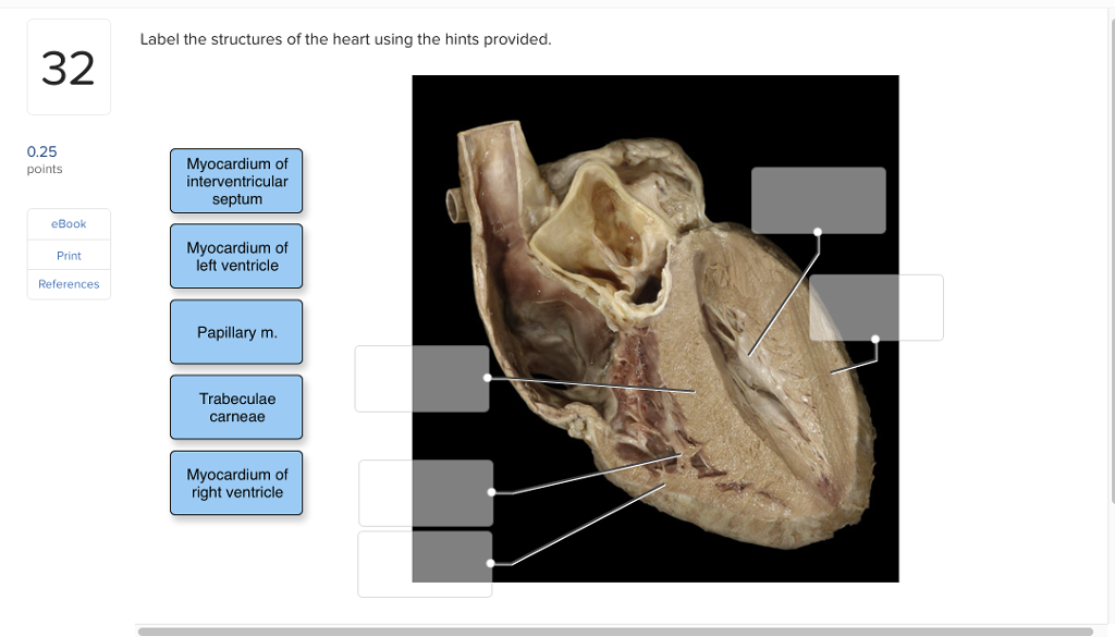 Solved Label The Structures Of The Heart Using The Hints