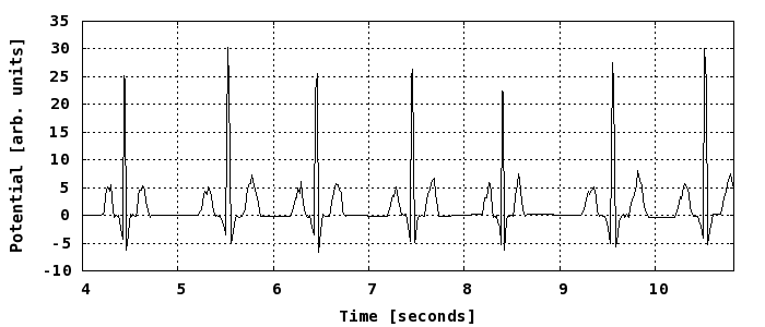 Solved the plot shows an electrocardiogram ekg of a pat question the plot shows an electrocardiogram ekg of a patient approximately what is her heart rate i ccuart Images